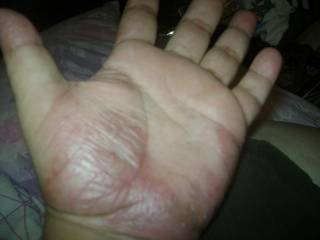 sífilis secundária na palma da mão
