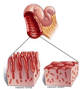 doença celícaca