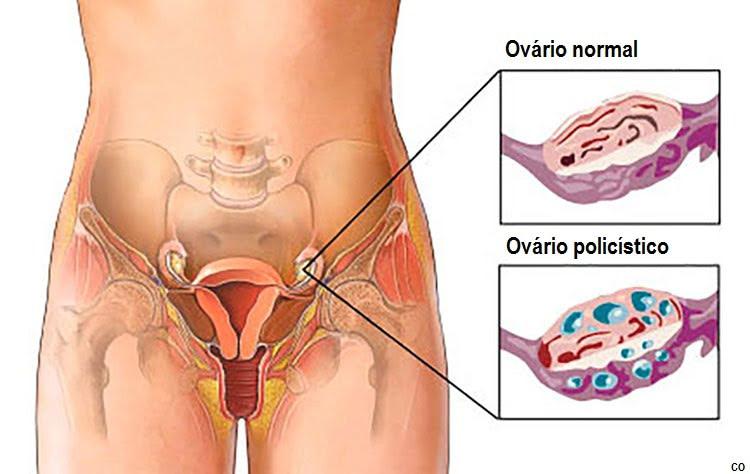 síndrome do ovário policístico
