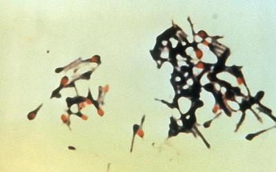 bactéria do tétano