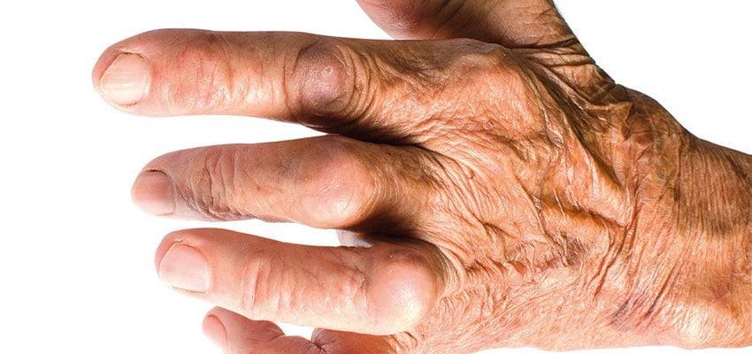 saiba tudo sobre artrite reumatóide