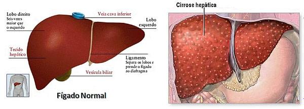 fígado normal e com cirrose