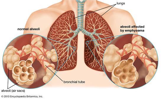 doença pulmonar ostrutiva crônica