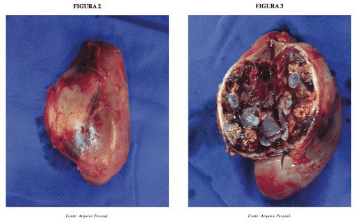 carcinomas do rim