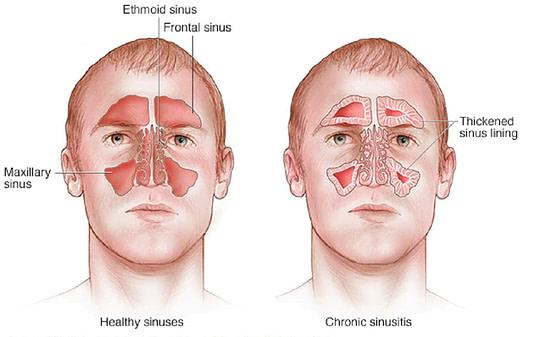 o que é sinusite, seus sintomas e tratamento