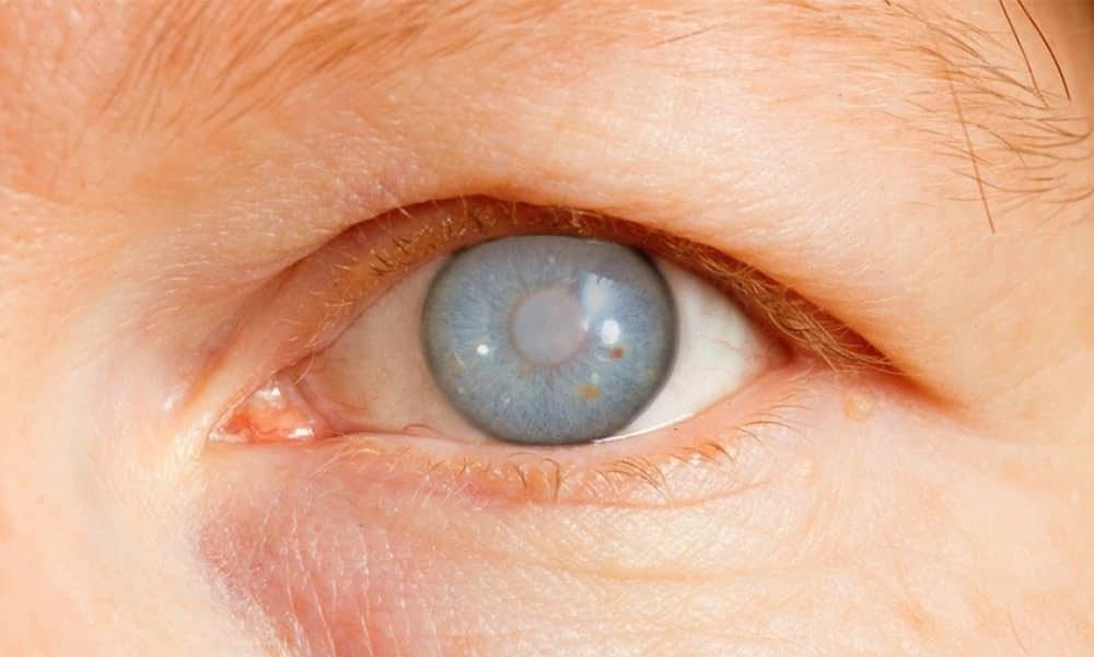 glaucoma, conheça as causas, os sintomas e o tratamento