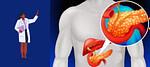 tipos e sintomas da pancreatite
