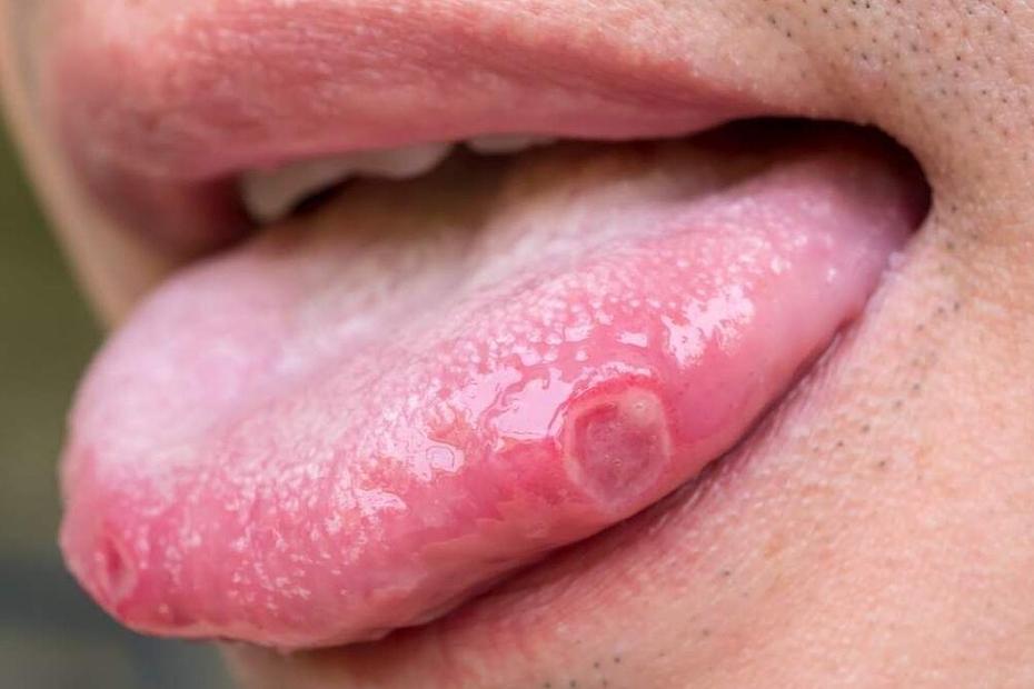 causas e tratamento das aftas na língua