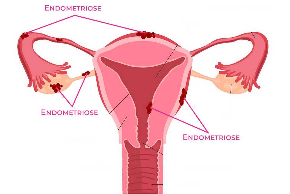 localização esquemática da endometriose