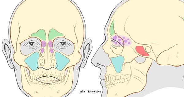rinite não alérgica