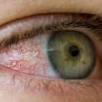 hipertensão ocular ou pressão intraocular