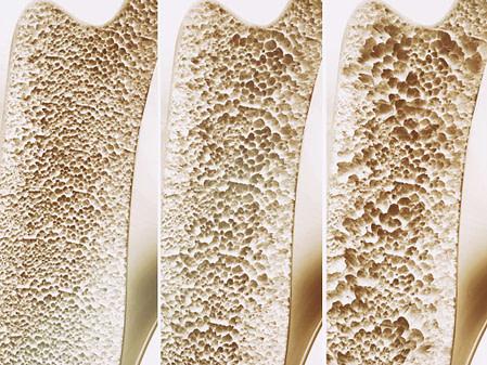 Osteoporose sintomas causas e tratamento