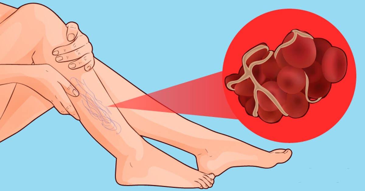 coágulo na perna ou TVP
