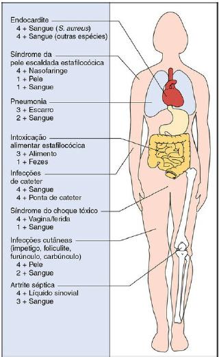 doenças causadas pelos Staphylococcus