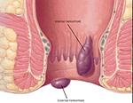 hemorróide