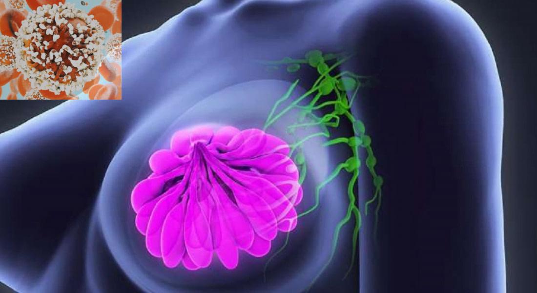 Será que os hormonas da menopausa causam câncer da mama?