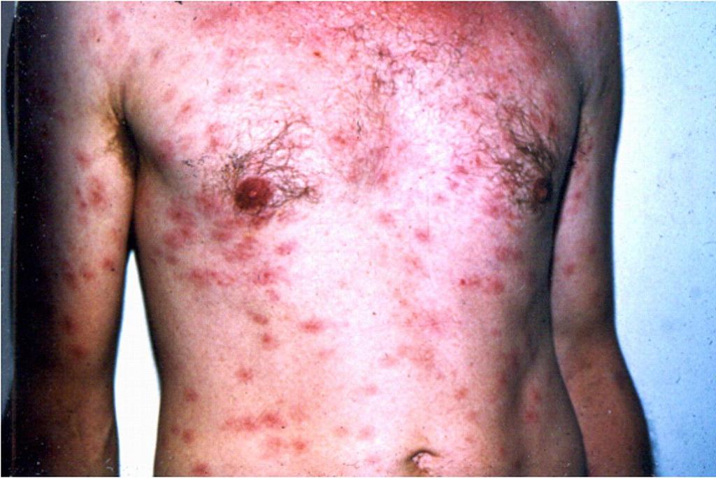 sífilis no abdômen