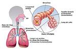 caracterização da bronquite